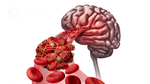 A stroke occurs when a blood vessel that provides the nutrients and oxygen towards the brain is blocked or ruptured.