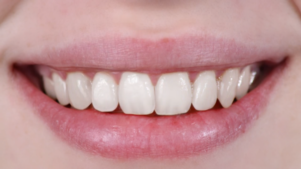 The state of the teeth and gums can reveal the overall health of the body.  (YouTube)
