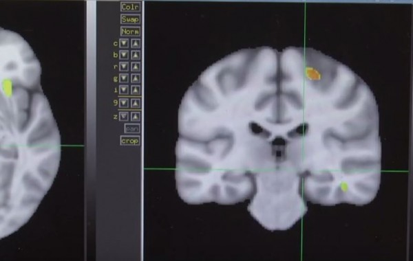 A brain scan result is displayed on a monitor.